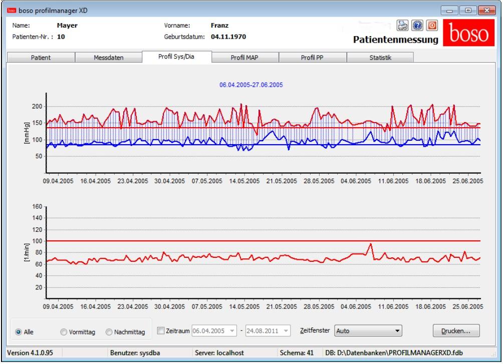 Boso Medicus Pc2 Anwenderfreundliches Blutdruckmessgerät Mit Pc